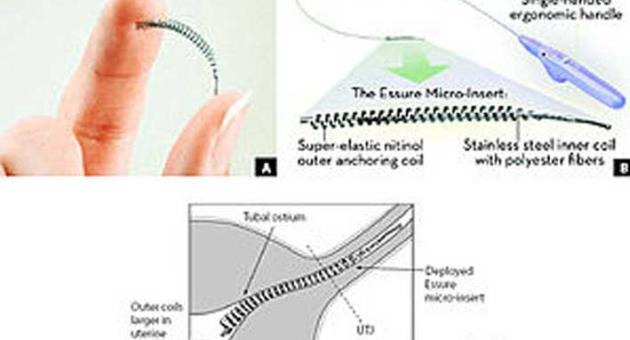 Fda Reviewing Safety Of Essure Birth Control Implant The